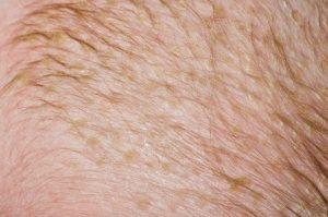 Dermatite seborroica e rosacea